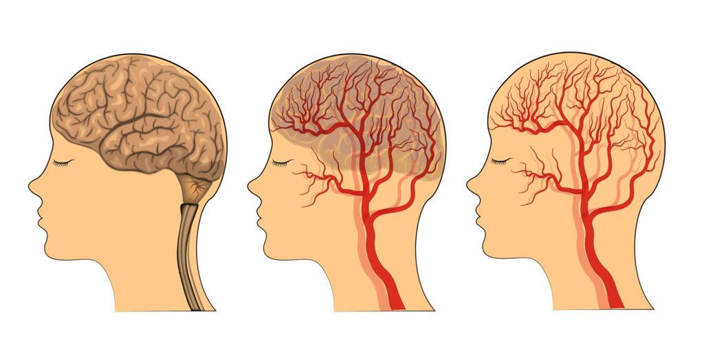Cerebro riego sanguíneo