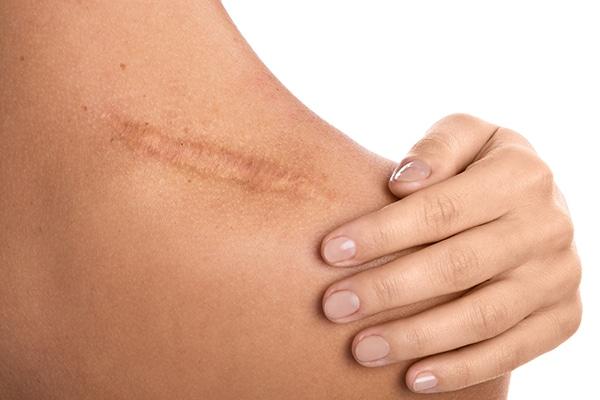 Cicatriz hombro