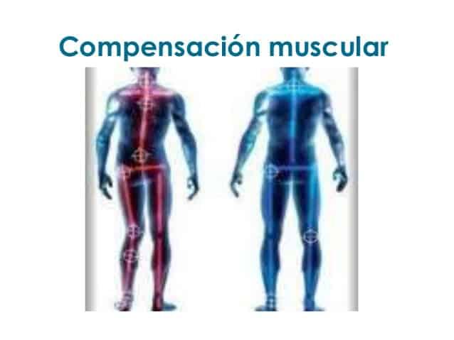 Compensación muscular