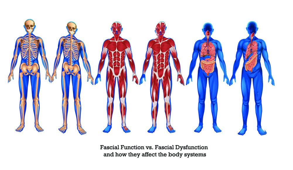 Cadenas musculares torcidas