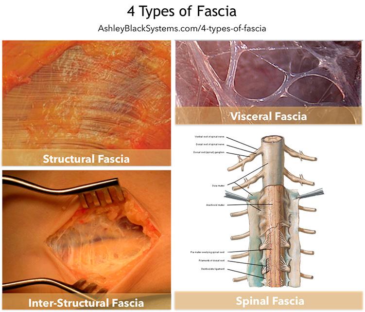 Cuatro tipos de fascias